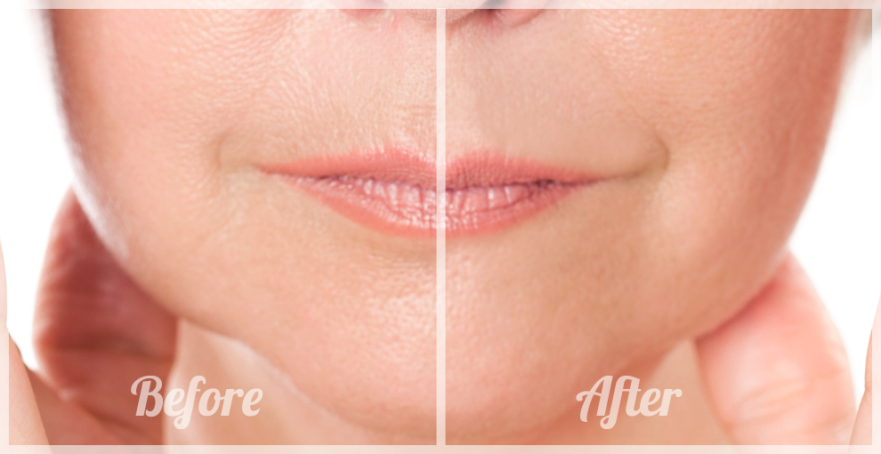 vertical-lines-lips-before-after